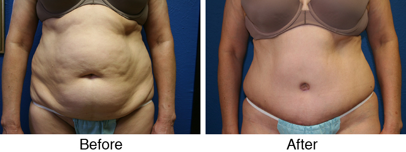breast lifts before and after pictures  613363